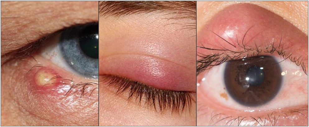 Difference between external stye, internal stye and chalazion.