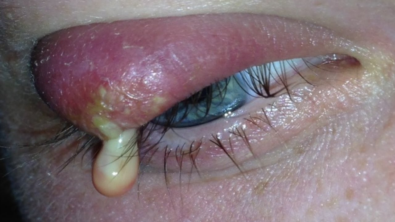 How To Get Rid Of Stye Under Eyelid Naturally